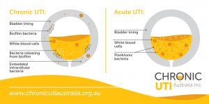 Acute UTI Chronic UTI